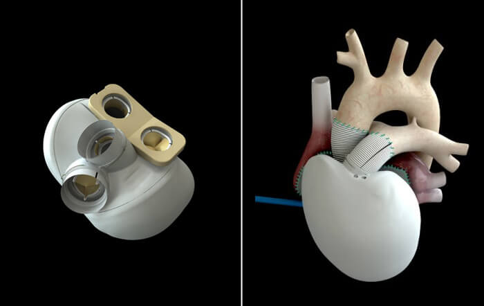 artificial heart 2013 2015 technology