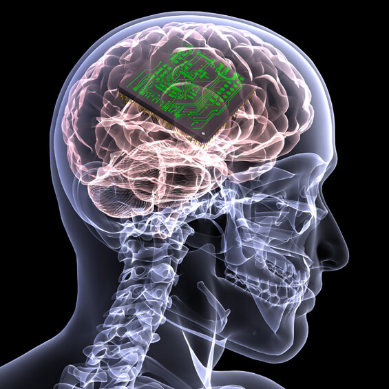memory chip brain implant