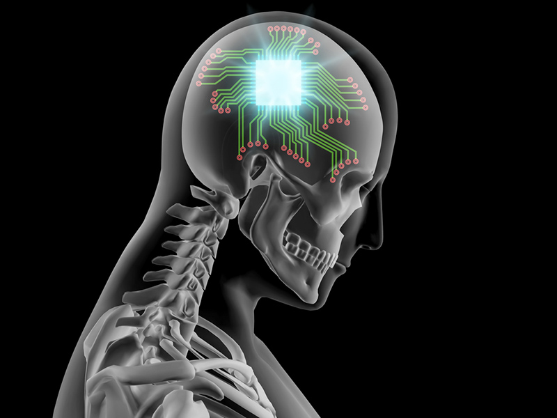 brain implant neural interface future timeline technology