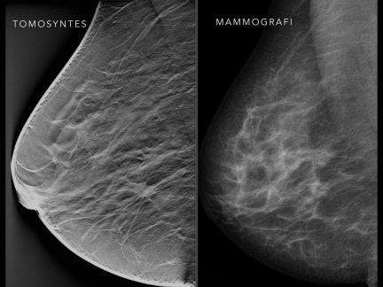 tomosynthesis vs mammography
