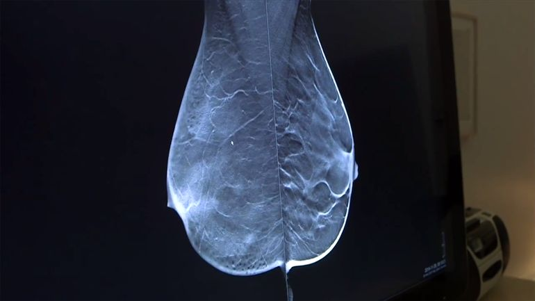 breast tomosynthesis future technology