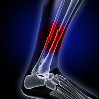 faster healing of bone injuries